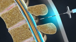 Epidural Steroid Injection