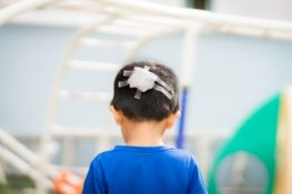 child with a bandage in the head