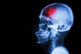 traumatic brain injury x-ray
