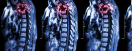 spinal cord injury xray