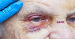 injured elderly due to abuse