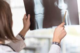 Compensacion laboral por lesion de rodilla